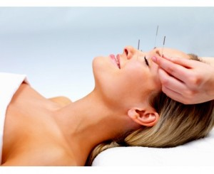 096 Akupunktur